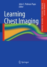 Learning Chest Imaging ebook by John C. Pedrozo Pupo