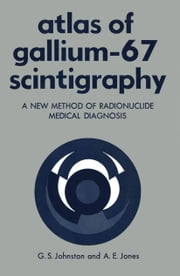 Atlas of Gallium-67 Scintigraphy - A New Method of Radionuclide Medical Diagnosis ebook by Gerald Johnston