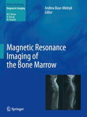 Magnetic Resonance Imaging of the Bone Marrow ebook by Andrea Baur-Melnyk