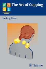 Art of Cupping ebook by Hedwig Manz