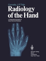 Radiology of the Hand - A Diagnostic Synopsis of Many General Diseases ebook by Louis A. Gilula,Cornelis J.P. Thijn