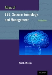Atlas of EEG, Seizure Semiology, and Management ebook by Karl E. Misulis