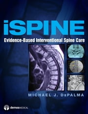 iSpine - Evidence-Based Interventional Spine Care ebook by Michael J. DePalma, MD