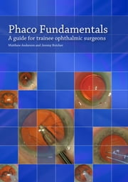 Phaco Fundamentals: A Guide to Trainee Ophthalmic Surgeons ebook by Anderson, Matthew