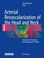 Arterial Revascularization of the Head and Neck - Text Atlas for Prevention and Management of Stroke ebook by Horia Muresian