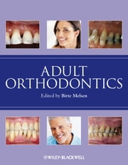 Adult Orthodontics ebook by Birte Melsen