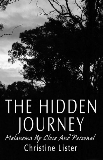 The Hidden Journey - Melanoma Up Close and Personal ebook by Christine Lister