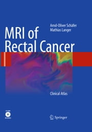 MRI of Rectal Cancer - Clinical Atlas ebook by Arnd-Oliver Schäfer, Mathias Langer