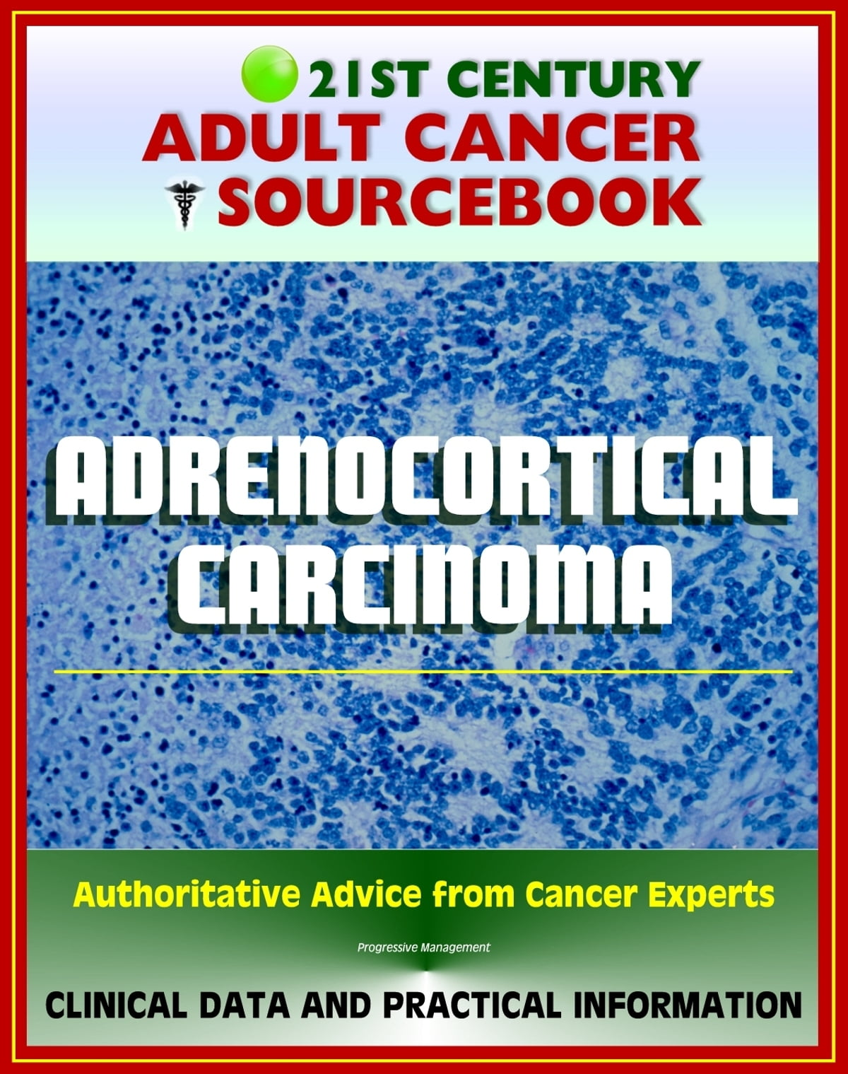 21st Century Adult Cancer Sourcebook Adrenocortical Carcinoma Cancer Of The Adrenal Cortex Clinical Data For Patients Families And Physicians
