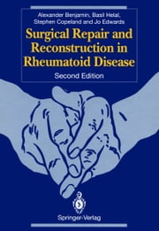 Surgical Repair and Reconstruction in Rheumatoid Disease ebook by Alexander Benjamin,Basil Helal,Stephen A. Copeland,Jo C.W. Edwards