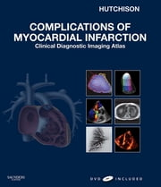 Complications of Myocardial Infarction - Clinical Diagnostic Imaging Atlas ebook by Stuart J. Hutchison,Ceil Nuyianes