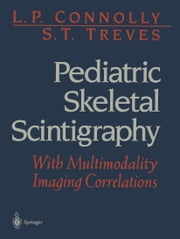Pediatric Skeletal Scintigraphy - With Multimodality Imaging Correlations ebook by L.P. Connolly,S.T. Treves