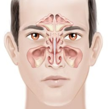 Chronic Sinusitis: Causes, Symptoms and Treatments ebook by Dawson Lawrence
