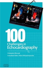 100 Challenges in Echocardiography ebook by Christophe Klimczak,Petros Nihoyannopoulos