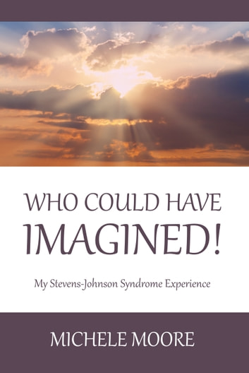 Who Could Have Imagined! - My Stevens-Johnson Syndrome Experience ebook by Michele Moore