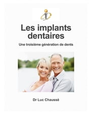 Les implants dentaires - Une troisième génération de dents ebook by Kobo.Web.Store.Products.Fields.ContributorFieldViewModel