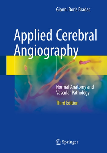 Applied Cerebral Angiography - Normal Anatomy and Vascular Pathology ebook by Edoardo Boccardi,Gianni Boris Bradac
