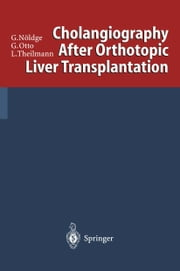 Cholangiography After Orthotopic Liver Transplantation ebook by Gerd Nöldge, Gerd Otto, Lorenz Theilmann