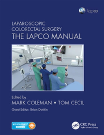 Laparoscopic Colorectal Surgery - The Lapco Manual ebook by