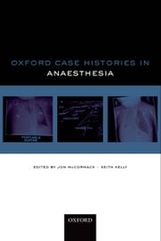 Oxford Case Histories in Anaesthesia ebook by Jon McCormack,Keith Kelly,Karen McGrath