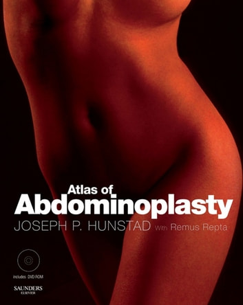 Atlas of Abdominoplasty ebook by Joseph Hunstad, MD, FACS,Remus Repta, MD