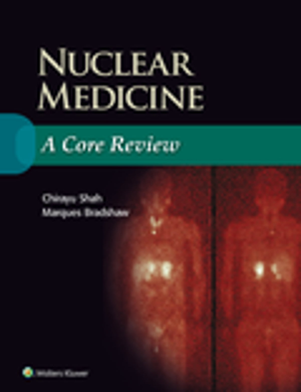 Nuclear medicine a core review ebook by chirayu shah nuclear medicine a core review ebook by chirayu shah 9781496338457 rakuten kobo fandeluxe Images