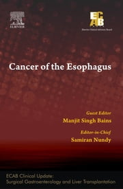 Cancer of the Esophagus - ECAB ebook by Samiran Nundy
