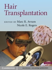 Hair Transplantation ebook by Marc R.  Avram,Nicole E. Rogers, MD