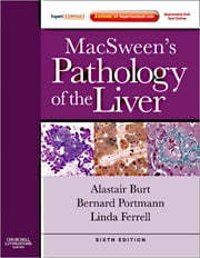 MacSween's Pathology of the Liver ebook by Alastair D. Burt,Bernard C. Portmann,Linda D. Ferrell,Stefan G Hubscher