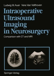 Intraoperative Ultrasound Imaging in Neurosurgery - Comparison with CT and MRI ebook by Ludwig M. Auer,Vera Van Velthoven