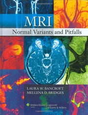 MRI Normal Variants and Pitfalls ebook by Laura W. Bancroft,Mellena D. Bridges