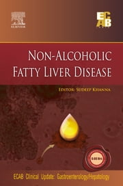 Non-Alcoholic Fatty Liver Disease - ECAB ebook by Sudeep Khanna, MD (Medicine)<br>DM (Gastroenterology)