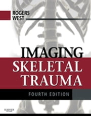 Imaging Skeletal Trauma ebook by Lee F. Rogers,O. Clark West