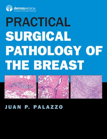 Practical Surgical Pathology of the Breast ebook by Juan P. Palazzo, MD