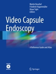 Video Capsule Endoscopy - A Reference Guide and Atlas ebook by Hisao Tajiri, Friedrich Hagenmüller, Martin Keuchel