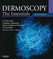 Dermoscopy - The Essentials ebook by H. Peter Soyer,Giuseppe Argenziano,Rainer Hofmann-Wellenhof,Iris Zalaudek
