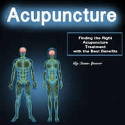 Acupuncture - Finding the Right Acupuncture Treatment with the Best Benefits audiobook by Quinn Spencer