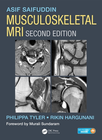 Musculoskeletal mri second edition ebook by asif saifuddin musculoskeletal mri second edition ebook by asif saifuddinphilippa tylerrikin hargunani fandeluxe Choice Image