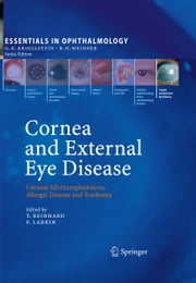 Cornea and External Eye Disease - Corneal Allotransplantation, Allergic Disease and Trachoma ebook by