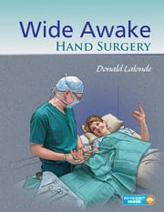 Wide Awake Hand Surgery ebook by Lalonde, Donald