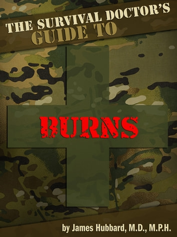 The Survival Doctor's Guide to Burns ebook by James Hubbard