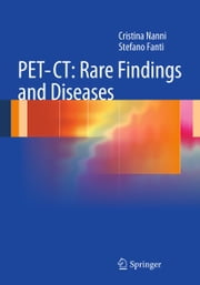 PET-CT: Rare Findings and Diseases ebook by Cristina Nanni,Stefano Fanti