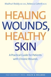 Healing Wounds, Healthy Skin - A Practical Guide for Patients with Chronic Wounds ebook by Madhuri Reddy,Rebecca Cottrill