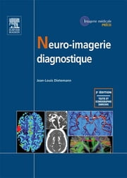 Neuro-imagerie diagnostique eBook by Jean-Louis Dietemann, Michel BLERY, Maher ABU EID,...