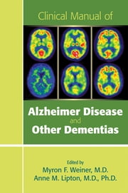 Clinical Manual of Alzheimer Disease and Other Dementias ebook by Myron F. Weiner,Anne M. Lipton