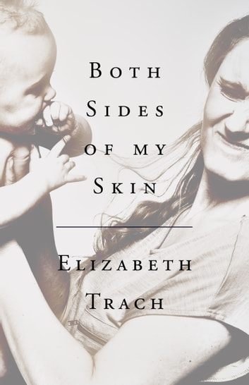 Both Sides of My Skin ebook by Elizabeth Trach