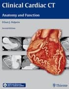 Clinical Cardiac CT - Anatomy and Function ebook by Ethan J. Halpern