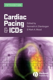 Cardiac Pacing and ICDs ebook by Kenneth A. Ellenbogen,Mark A. Wood