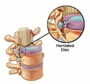 An Informative Guide About Herniated Disks ebook by Burma Bertozzi