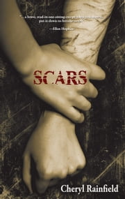 Scars ebook by Rainfield, Cheryl